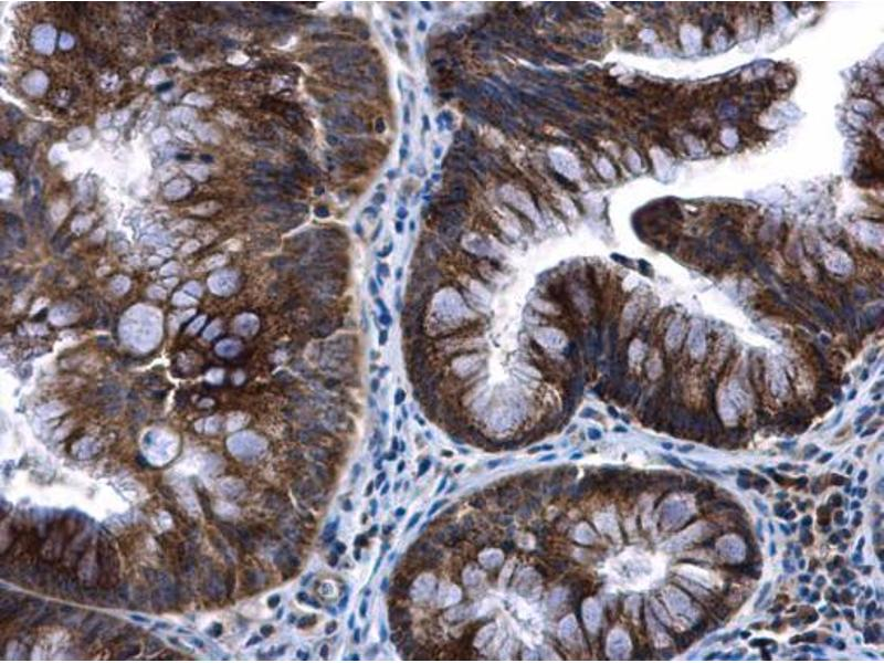 Immunohistochemistry (IHC) image for anti-Transcription Factor A, Mitochondrial (TFAM) (Center) antibody (ABIN2855585)