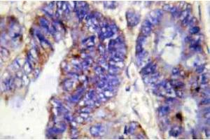 Image no. 1 for anti-Collagen, Type IV, alpha 2 (COL4A2) (Chain alpha 2) antibody (ABIN498375)