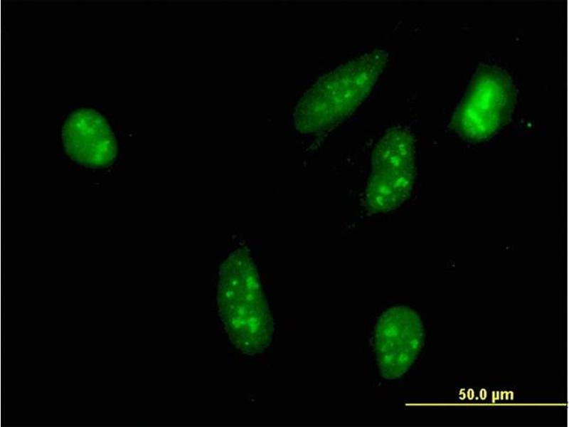 Immunofluorescence (IF) image for anti-Ribosomal Protein S6 Kinase, 90kDa, Polypeptide 2 (RPS6KA2) (AA 631-733), (partial) antibody (ABIN562719)