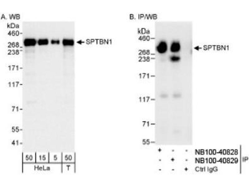 Western Blotting (WB) image for anti-Spectrin Beta, Non-Erythrocytic 1 (SPTBN1) (AA 2100-2150) antibody (ABIN4355578)
