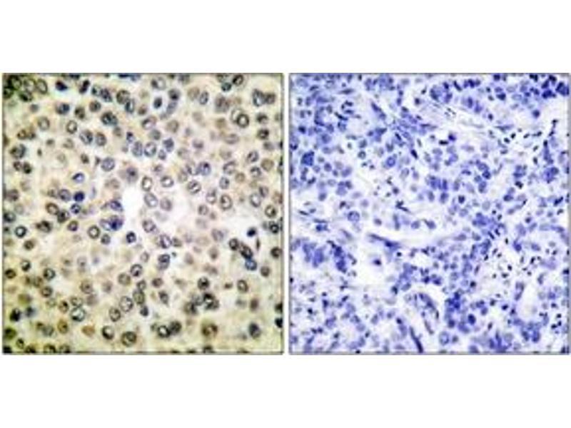 Immunohistochemistry (IHC) image for anti-Nuclear Factor-KB P65 (NFkBP65) (AA 275-324) antibody (ABIN1535550)