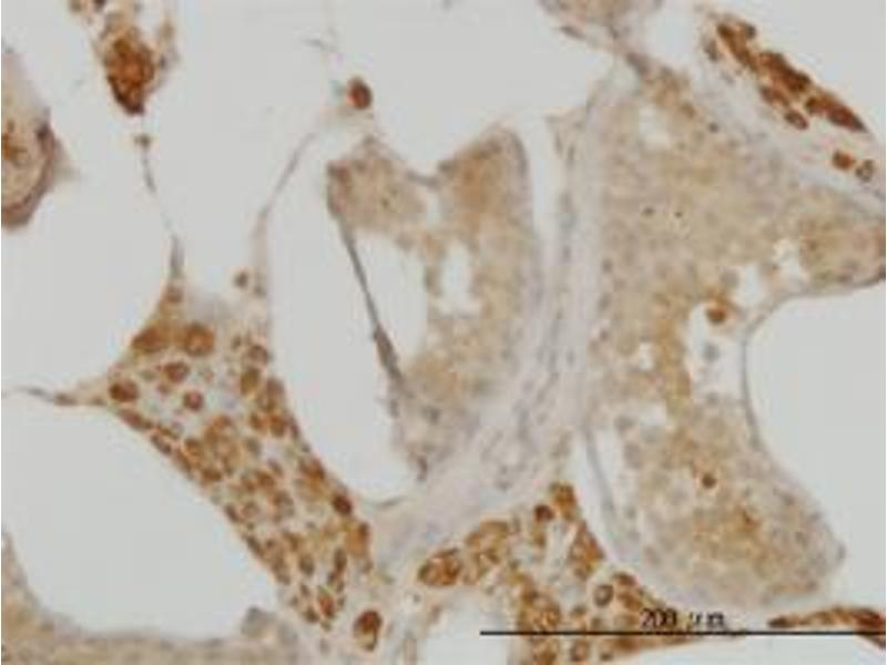 Immunohistochemistry (Paraffin-embedded Sections) (IHC (p)) image for anti-Cell Division Cycle 123 Homolog (S. Cerevisiae) (CDC123) (AA 1-337) antibody (ABIN396252)