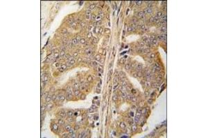 Immunohistochemistry (Paraffin-embedded Sections) (IHC (p)) image for anti-Paxillin antibody (PXN) (pTyr118) (ABIN359002)
