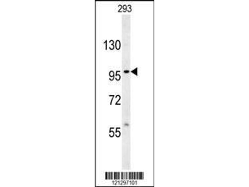 Western Blotting (WB) image for anti-Very Low Density Lipoprotein Receptor (VLDLR) (AA 484-510), (Center) antibody (ABIN651940)