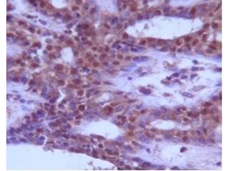 Immunohistochemistry (IHC) image for anti-Beclin 1 antibody (Beclin 1, Autophagy Related) (AA 150-300) (ABIN259945)