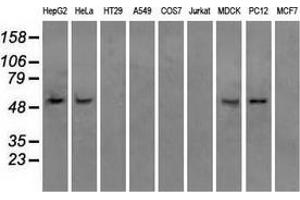 Image no. 2 for anti-ATP Synthase, H+ Transporting, Mitochondrial F1 Complex, beta Polypeptide (ATP5B) antibody (ABIN2716441)