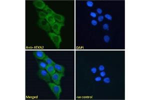 Image no. 2 for anti-Ataxin 2 (ATXN2) (Internal Region) antibody (ABIN570879)