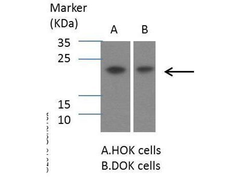 Western Blotting (WB) image for anti-Suppressor of Cytokine Signaling 1 (SOCS1) (C-Term) antibody (ABIN2854825)