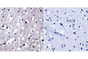 Immunohistochemistry (Paraffin-embedded Sections) (IHC (p)) image for anti-Nuclear Factor of Activated T-Cells 5, Tonicity-Responsive (NFAT5) antibody (ABIN267152)