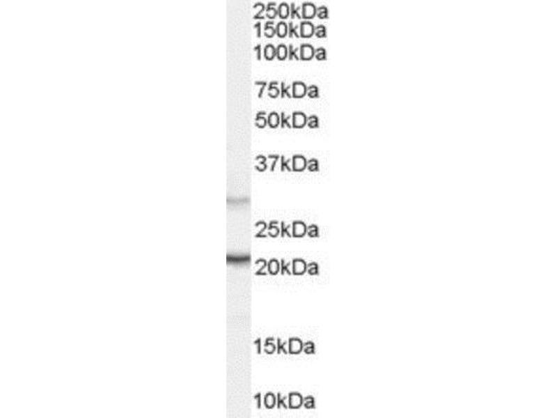 Western Blotting (WB) image for anti-Protein Tyrosine Phosphatase Type IVA, Member 3 (PTP4A3) (N-Term) antibody (ABIN257782)