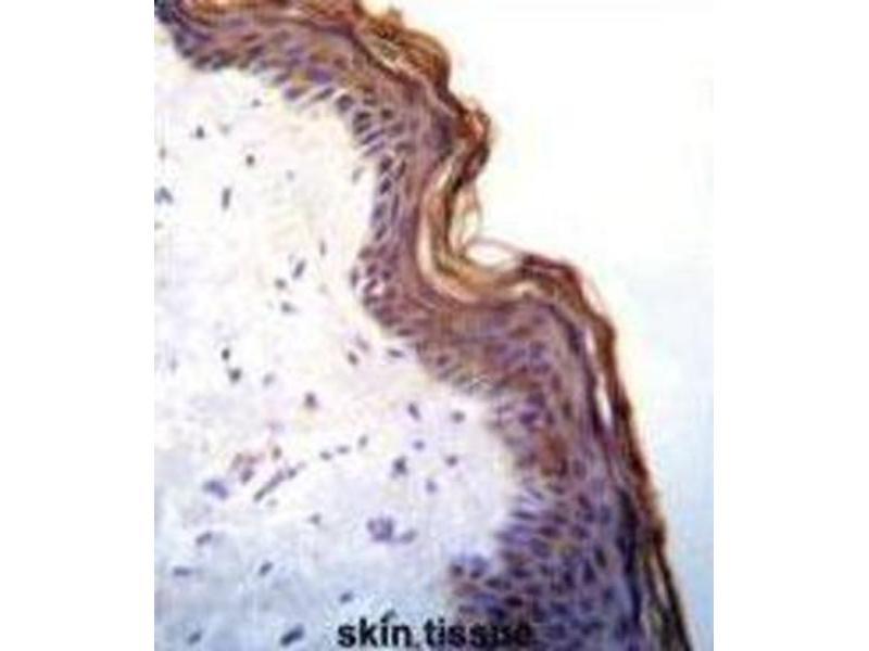 Immunohistochemistry (IHC) image for anti-Kallikrein 7 (KLK7) antibody (ABIN3002618)