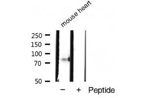 Image no. 2 for anti-Signal Transducer and Activator of Transcription 4 (STAT4) (pTyr693) antibody (ABIN6256790)