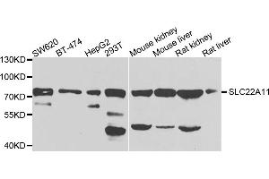 Image no. 2 for anti-Solute Carrier Family 22 (Organic Cation Transporter), Member 11 (SLC22A11) antibody (ABIN6571383)