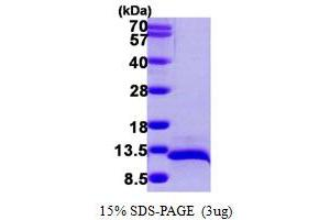 Image no. 1 for Chemokine (C-C Motif) Ligand 14 (CCL14) (AA 20-93) protein (His tag) (ABIN667363)