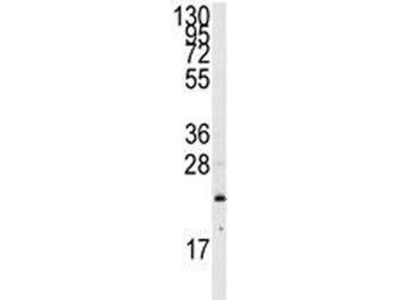 Western Blotting (WB) image for anti-GTPase NRas (NRAS) (AA 72-101) antibody (ABIN3031130)