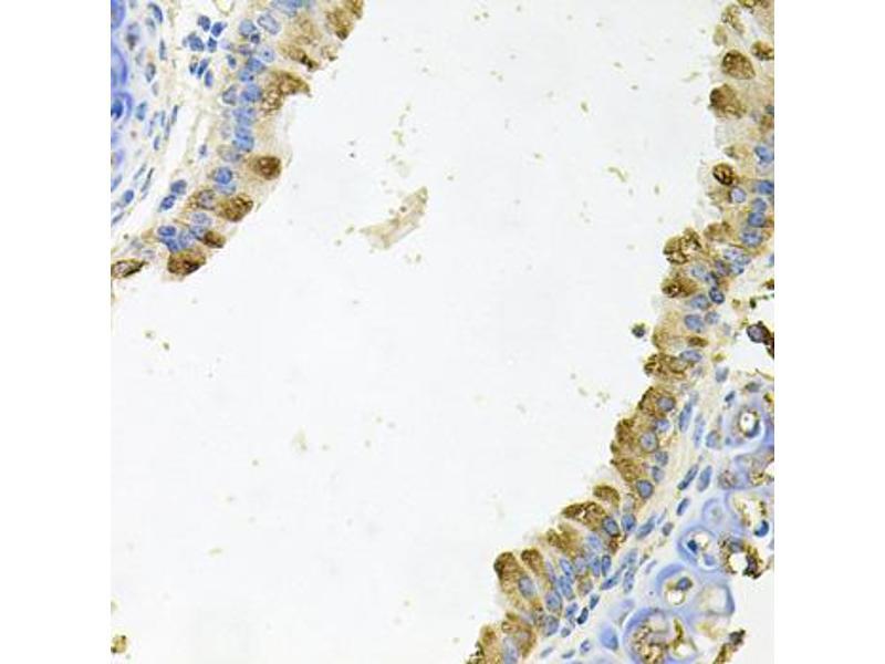 Immunohistochemistry (IHC) image for anti-Kallikrein 11 (KLK11) antibody (ABIN6570592)