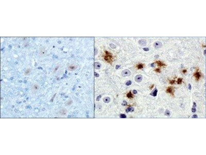 Immunohistochemistry (IHC) image for anti-Amyloid beta (Abeta) antibody (ABIN4284085)
