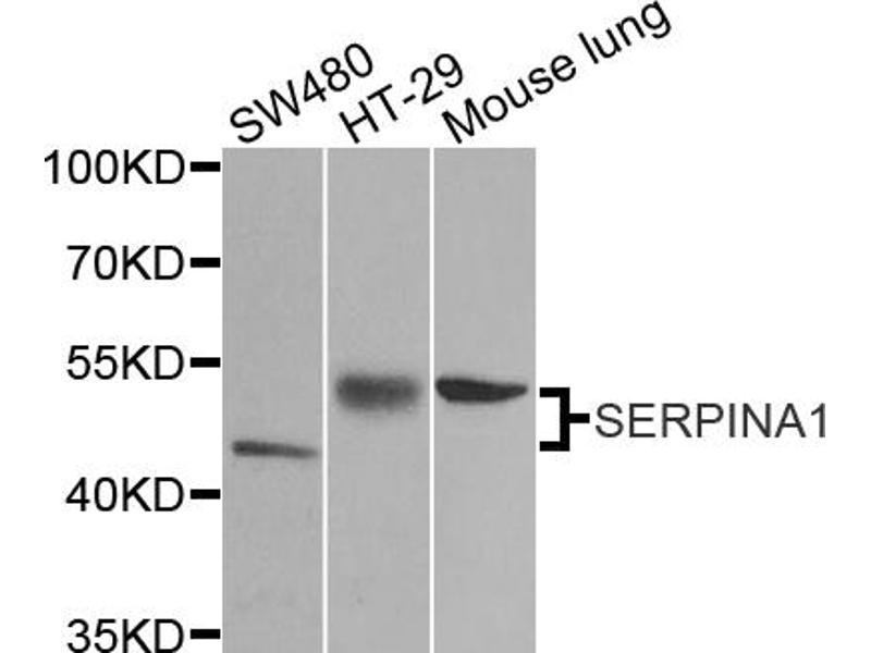 Image no. 1 for anti-serpin Peptidase Inhibitor, Clade A (Alpha-1 Antiproteinase, Antitrypsin), Member 1 (SERPINA1) antibody (ABIN6566795)