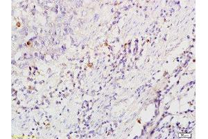 Immunohistochemistry (Paraffin-embedded Sections) (IHC (p)) image for anti-CD86 Molecule (CD86) (AA 130-180) antibody (ABIN736701)