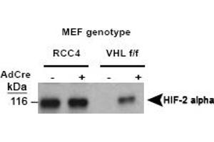 Western Blotting (WB) image for anti-HIF2A / HIF2 alpha (Sample Pack) (AA 535-631) antibody (ABIN152189)