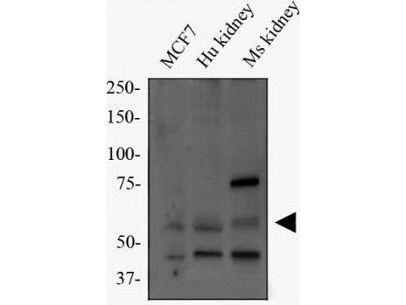 Western Blotting (WB) image for anti-Peptidoglycan Recognition Protein 2 (PGLYRP2) antibody (ABIN4345111)
