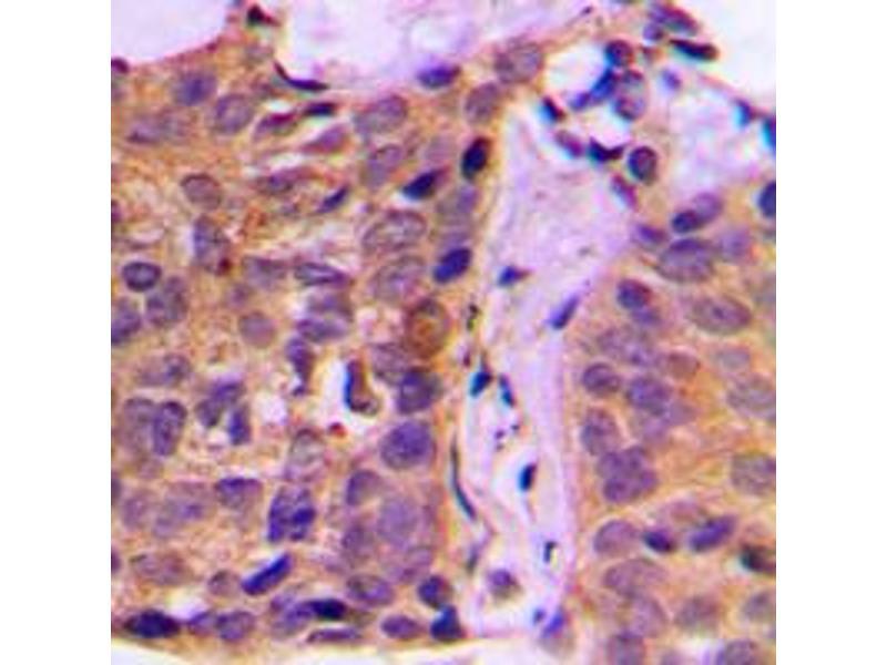Immunohistochemistry (IHC) image for anti-tyrosine 3-Monooxygenase/tryptophan 5-Monooxygenase Activation Protein, zeta Polypeptide (YWHAZ) (Center) antibody (ABIN2705350)