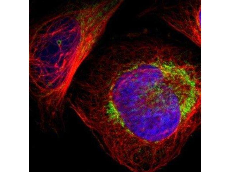 Image no. 2 for anti-Chromosome 14 Open Reading Frame 119 (C14ORF119) antibody (ABIN4286030)