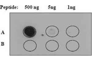 Western Blotting (WB) image for anti-JAK2 antibody (Janus Kinase 2) (Tyr1007) (ABIN189473)