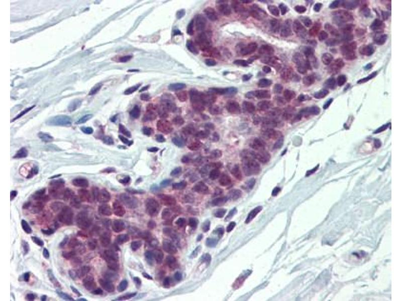Immunohistochemistry (IHC) image for anti-Poly(rC) Binding Protein 1 (PCBP1) (Middle Region) antibody (ABIN310056)