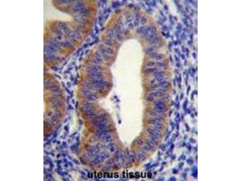 Immunohistochemistry (Paraffin-embedded Sections) (IHC (p)) image for anti-FYVE, RhoGEF and PH Domain Containing 6 (FGD6) (AA 1331-1359), (C-Term) antibody (ABIN952305)
