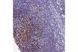 Image no. 1 for anti-B-Cell CLL/lymphoma 7A (BCL7A) antibody (ABIN5649392)