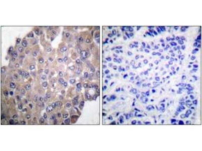 Immunohistochemistry (IHC) image for anti-Phospholipase C gamma 1 antibody (phospholipase C, gamma 1) (pTyr771) (ABIN1531235)