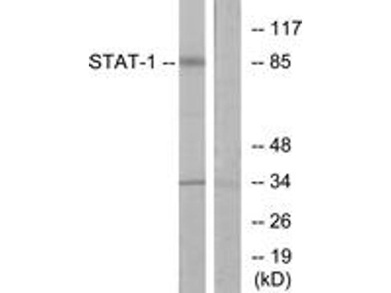 Western Blotting (WB) image for anti-Signal Transducer and Activator of Transcription 1, 91kDa (STAT1) (AA 668-717) antibody (ABIN1533008)
