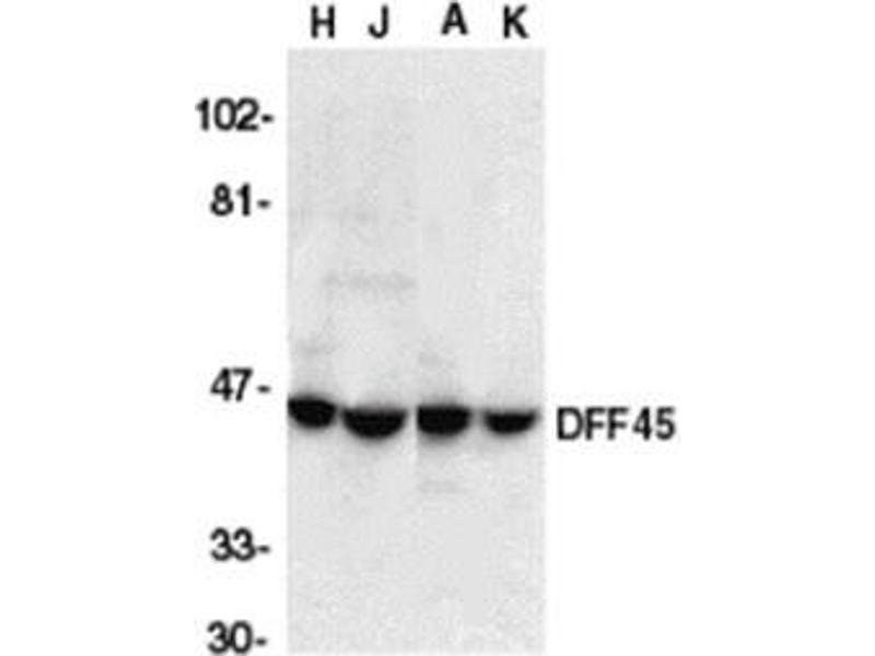 Western Blotting (WB) image for anti-DFFA antibody (DNA Fragmentation Factor, 45kDa, alpha Polypeptide) (C-Term) (ABIN499742)
