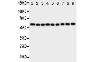 Image no. 1 for anti-Interleukin 5 Receptor, alpha (IL5RA) (AA 53-68), (N-Term) antibody (ABIN3043143)