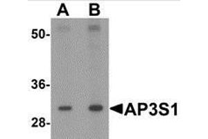 Image no. 1 for anti-Adaptor-Related Protein Complex 3, sigma 1 Subunit (AP3S1) (Center) antibody (ABIN783504)