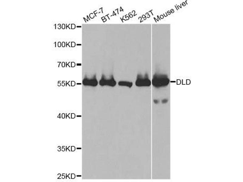 Image no. 3 for anti-Dihydrolipoamide Dehydrogenase (DLD) antibody (ABIN6567863)