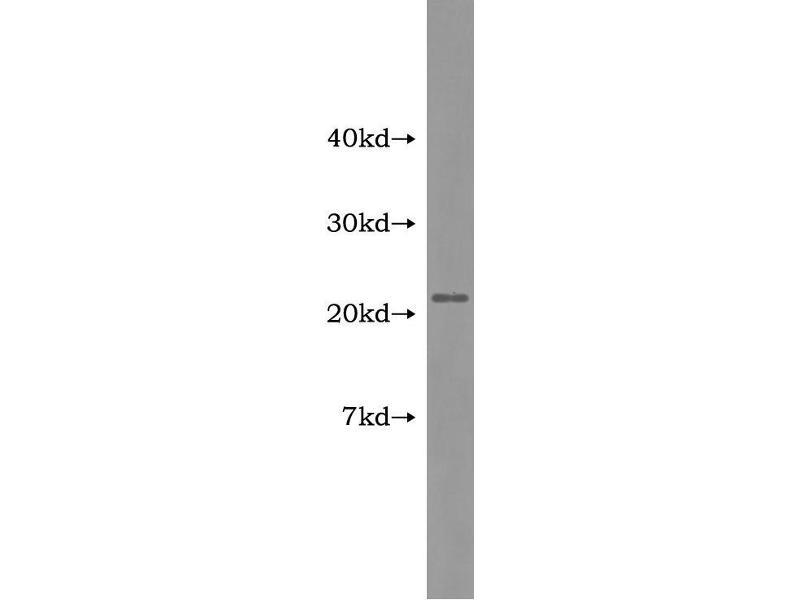 Adrenomedullin (ADM) ELISA Kit (4)