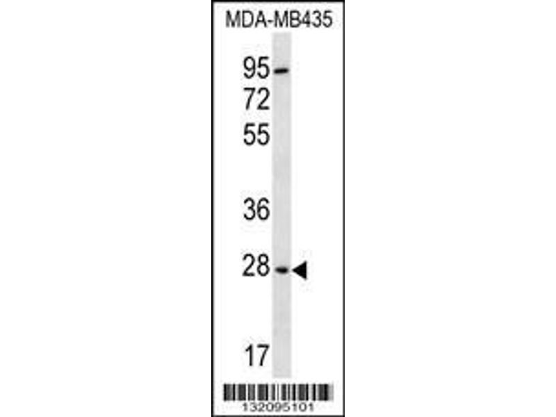 Western Blotting (WB) image for anti-BPGM antibody (2,3-bisphosphoglycerate Mutase) (AA 230-259) (ABIN656546)