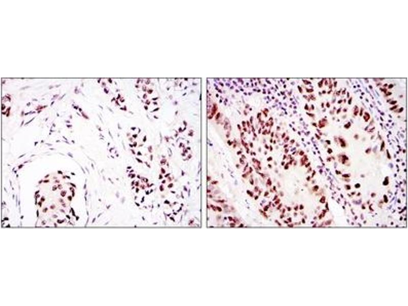 Immunohistochemistry (IHC) image for anti-PRKDC antibody (Protein Kinase, DNA-Activated, Catalytic Polypeptide) (ABIN1107001)