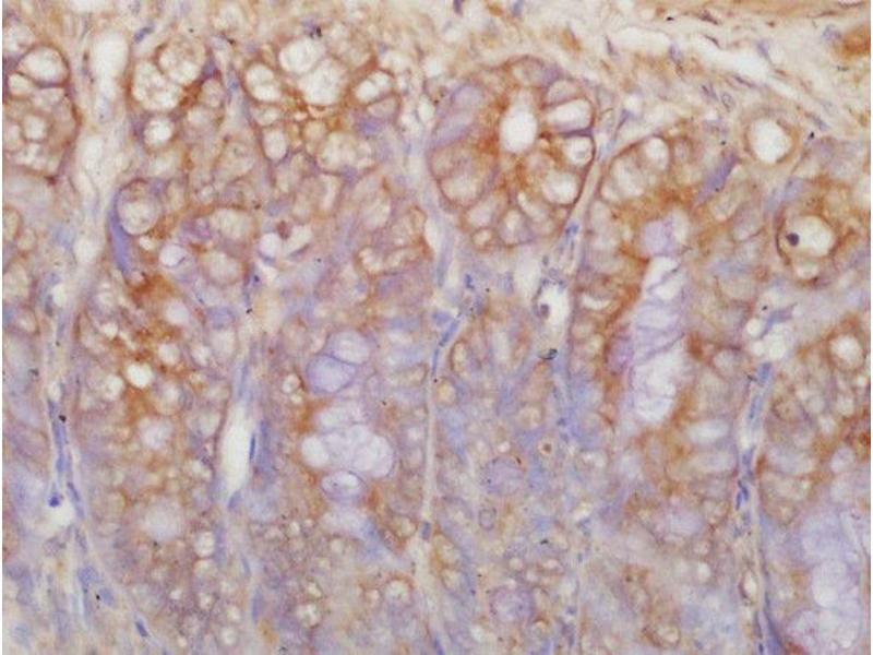 Immunohistochemistry (Paraffin-embedded Sections) (IHC (p)) image for anti-Mast/stem Cell Growth Factor Receptor (KIT) (AA 360-405) antibody (ABIN1387260)