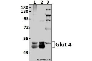 Image no. 1 for anti-Solute Carrier Family 2 (Facilitated Glucose Transporter), Member 4 (SLC2A4) (AA 250-300) antibody (ABIN6713392)