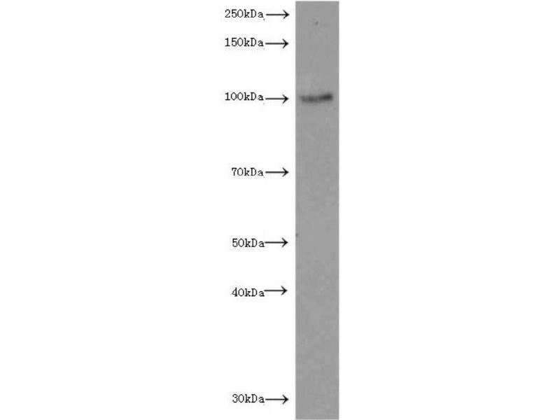 Western Blotting (WB) image for anti-Luteinizing Hormone/choriogonadotropin Receptor (LHCGR) antibody (ABIN2937954)