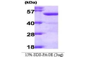 SDS-PAGE (SDS) image for Aldehyde Dehydrogenase 2 Family (Mitochondrial) (ALDH2) (AA 18-517) peptide (ABIN935020)