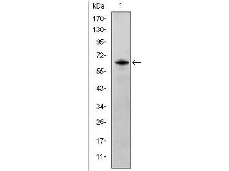 Western Blotting (WB) image for anti-FYN antibody (FYN Oncogene Related To SRC, FGR, YES) (ABIN1107284)