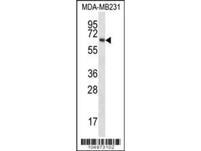 Western Blotting (WB) image for anti-TPTEa (AA 42-74), (N-Term) antibody (ABIN652246)