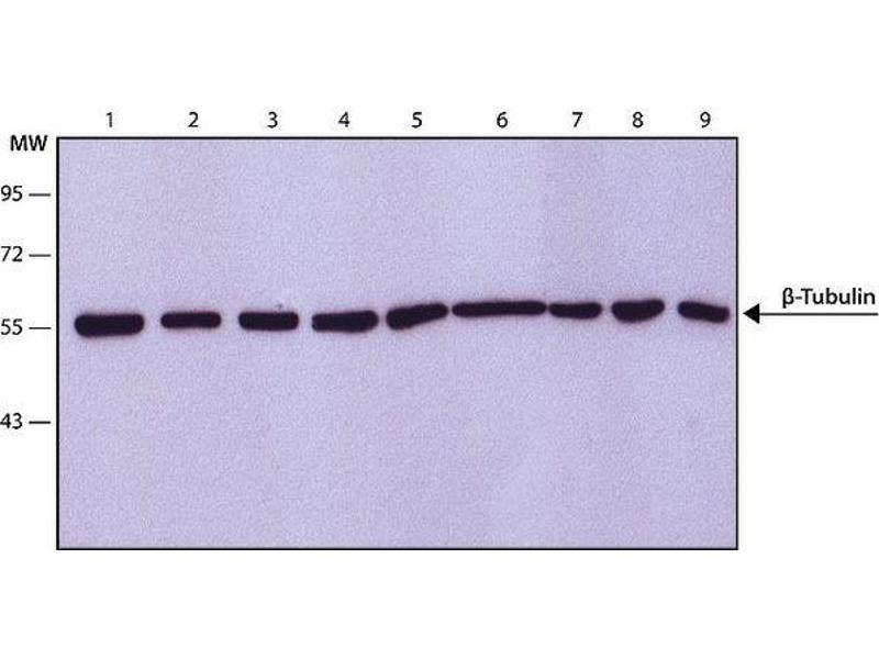 Image no. 3 for anti-TUBB antibody (Tubulin, beta) (ABIN136835)