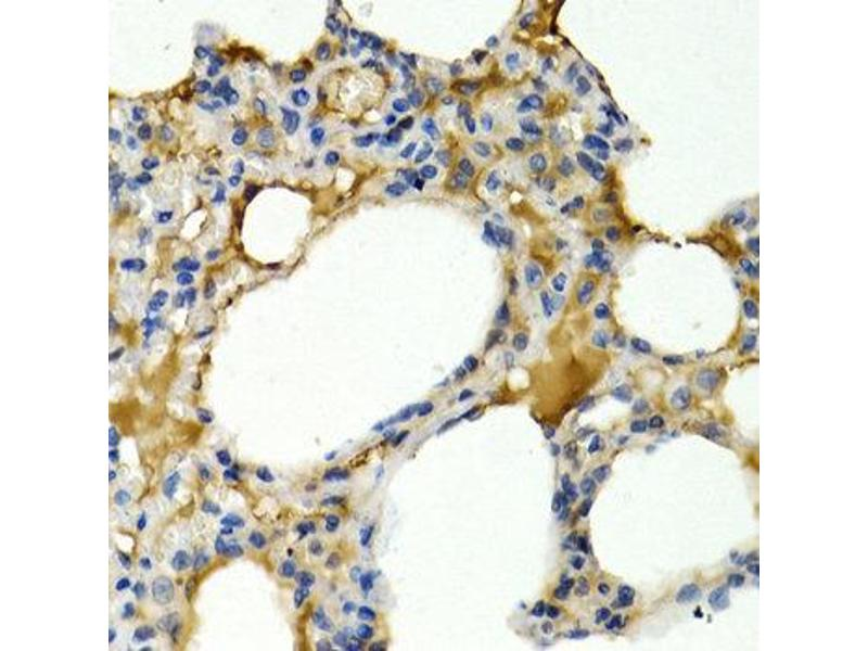 Immunohistochemistry (IHC) image for anti-IL9 antibody (Interleukin 9) (ABIN1873223)
