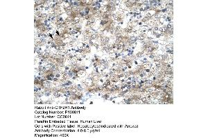 Image no. 2 for anti-General Transcription Factor IIH, Polypeptide 1, 62kDa (GTF2H1) (N-Term) antibody (ABIN2792595)