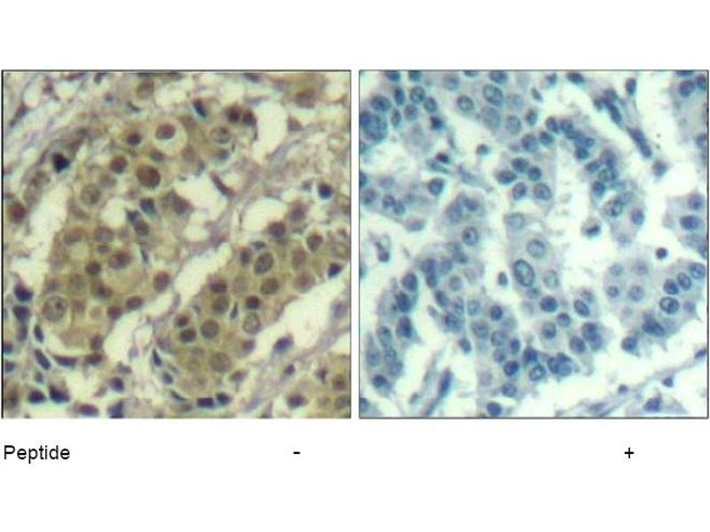 Image no. 1 for anti-AKT antibody (V-Akt Murine Thymoma Viral Oncogene Homolog 1) (Thr450) (ABIN319375)